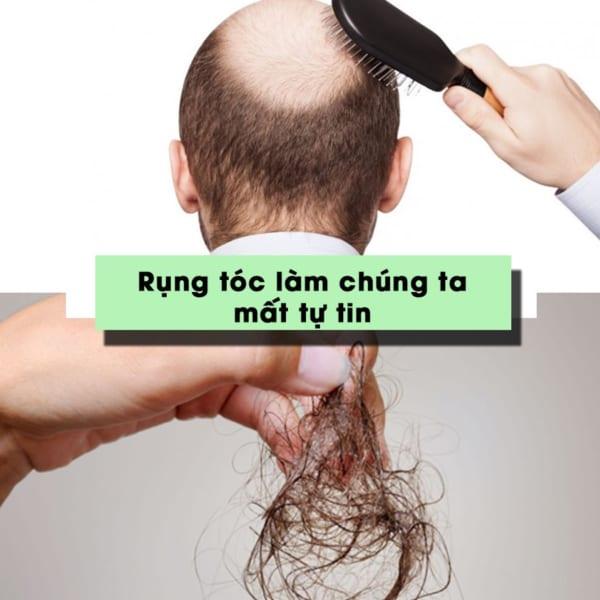 Rụng tóc làm chúng ta mất tự tin