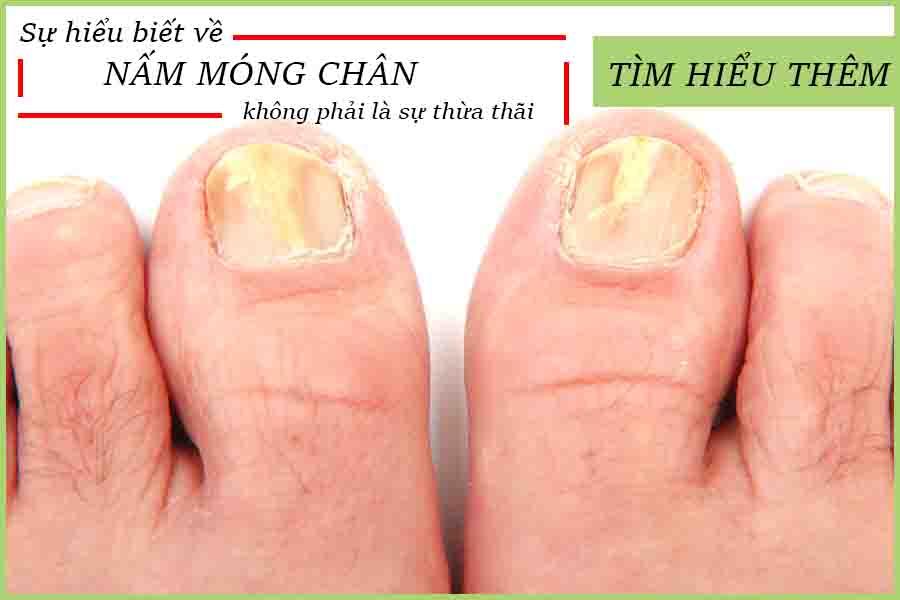 Bệnh nấm móng chân