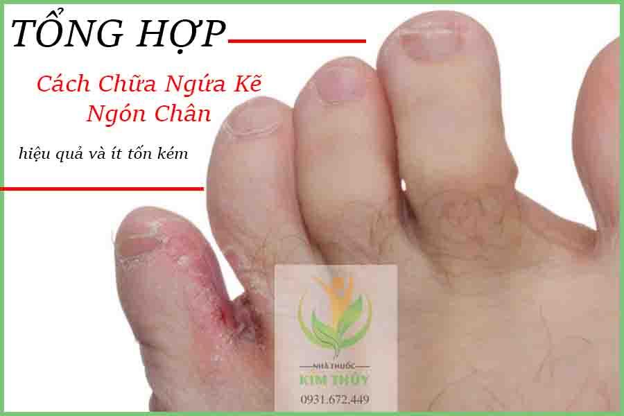 Cách chữa ngứa kẽ ngón chân