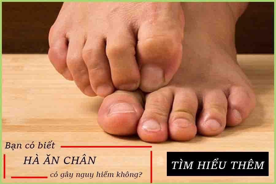 Hà ăn chân