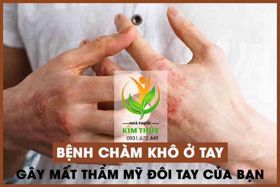 Bệnh chàm khô ở tay