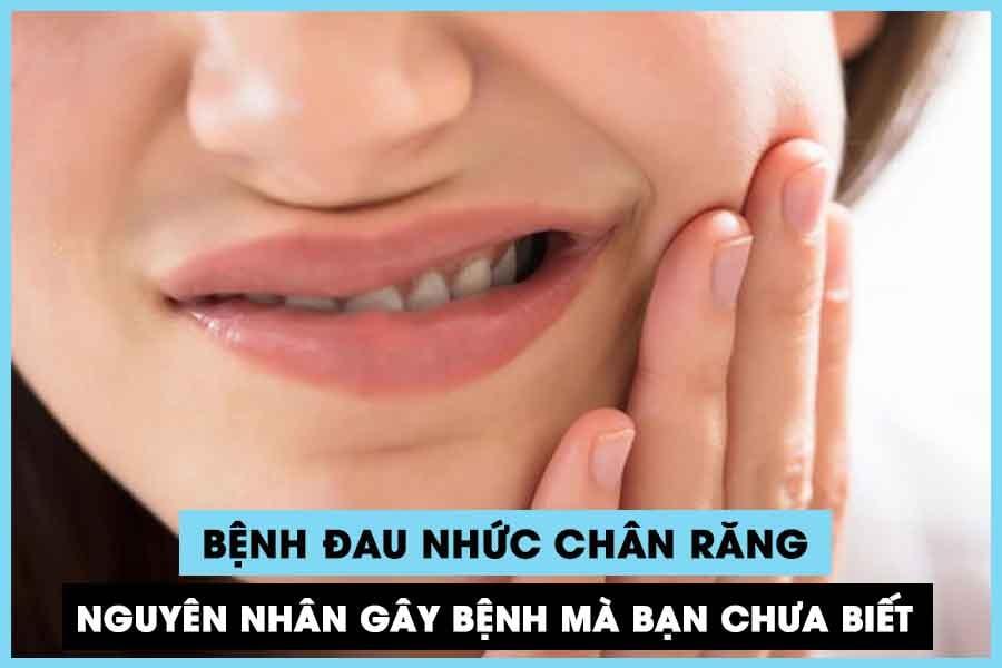 Bệnh đau nhức chân răng