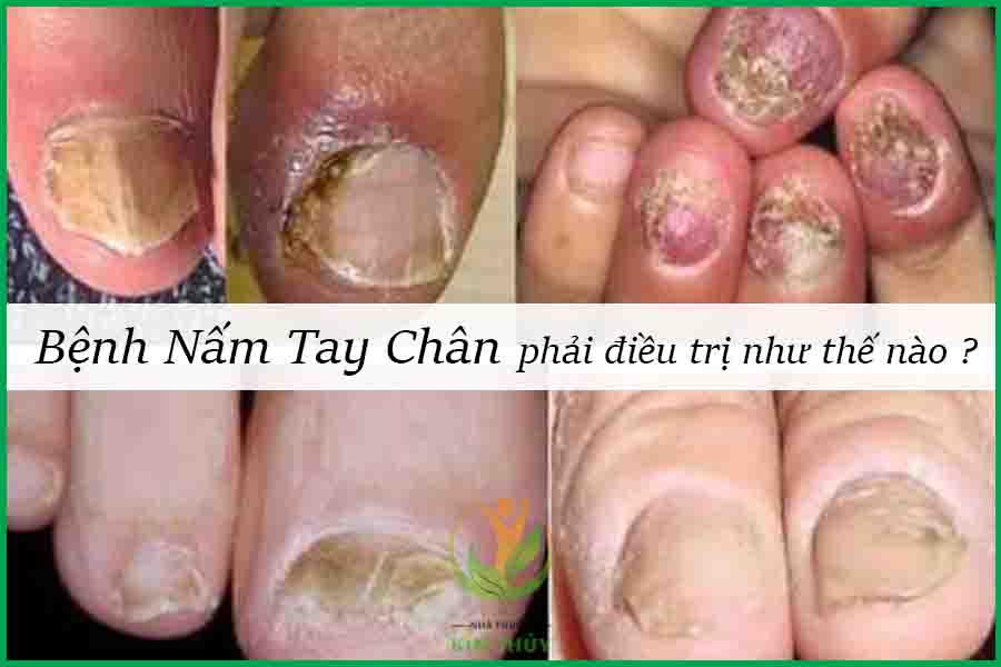 Bệnh nấm tay chân