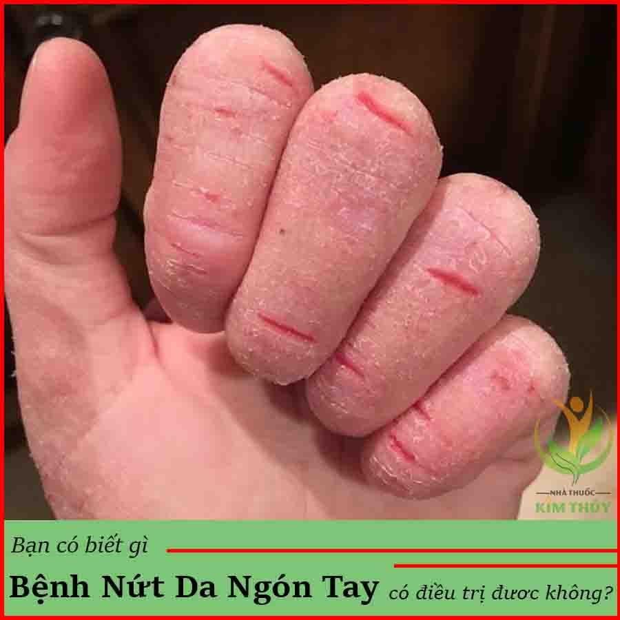 Bệnh nứt da ở ngón tay