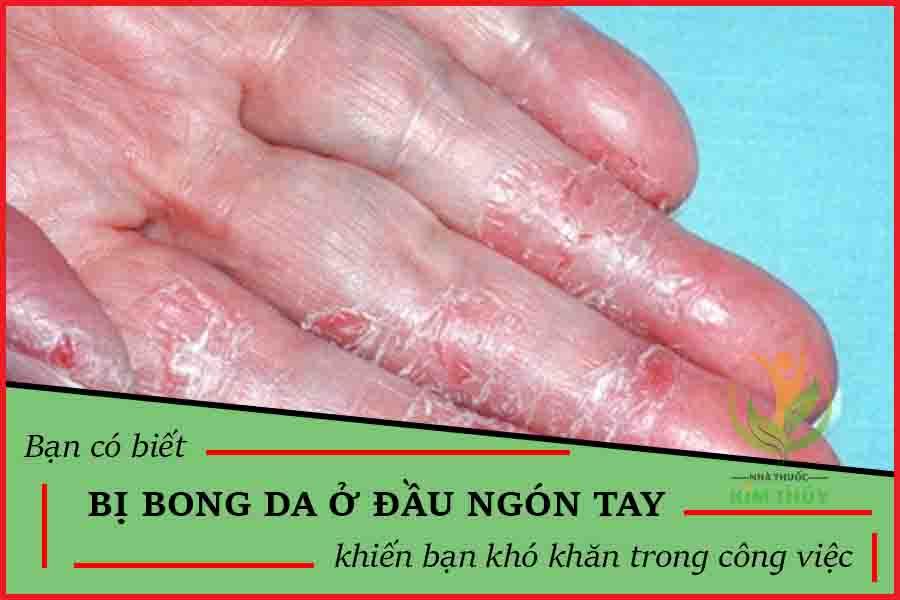 Bị bong tróc da ở đầu ngón tay