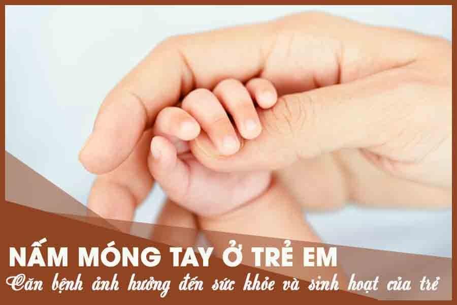 Nấm móng tay ở trẻ em