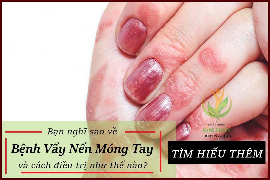 Bệnh vẩy nến móng tay