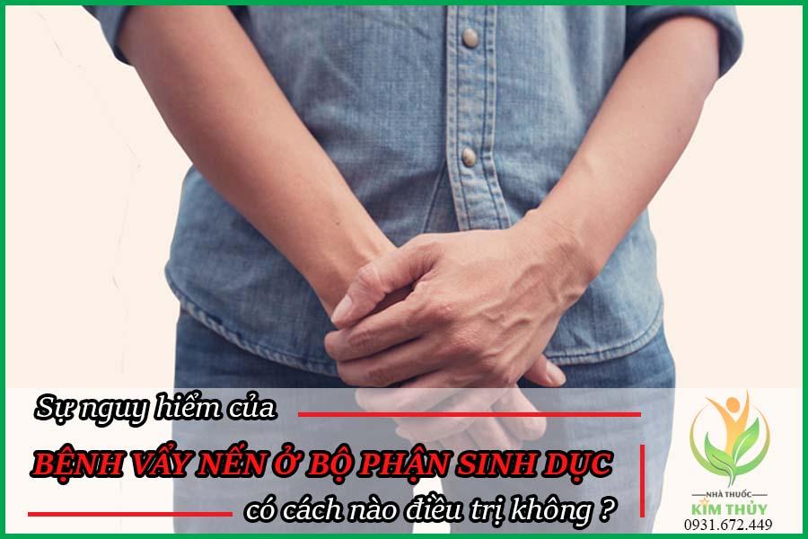 Bệnh vẩy nến ở bộ phận sinh dục